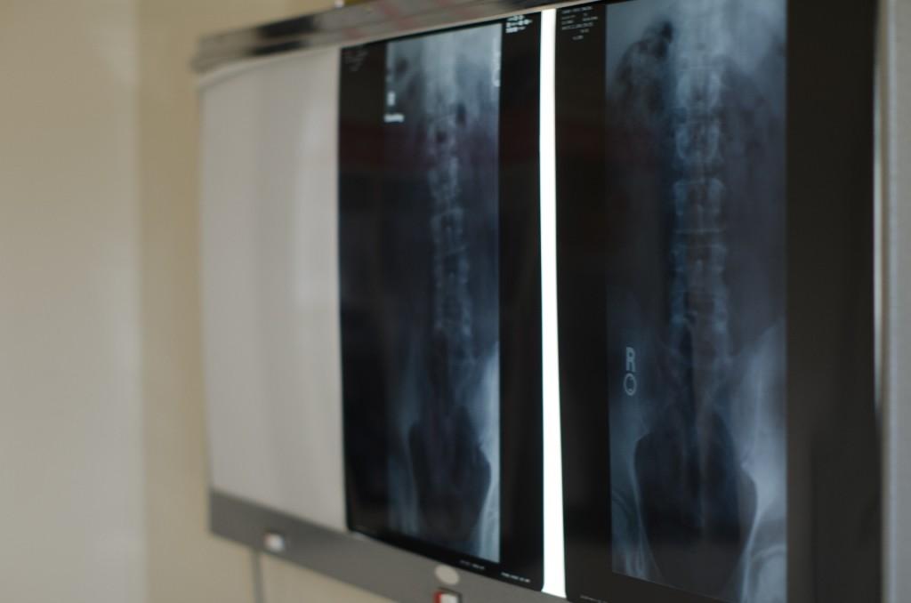 妊娠中の医療でやって良い事と悪い事は?X線検査や歯科は大丈夫?